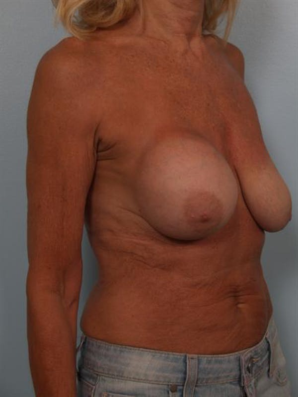 Breast Lift Gallery - Patient 1311063 - Image 5