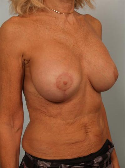 Breast Lift Gallery - Patient 1311063 - Image 6