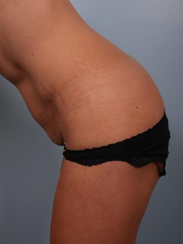 Tummy Tuck Gallery - Patient 1311065 - Image 7