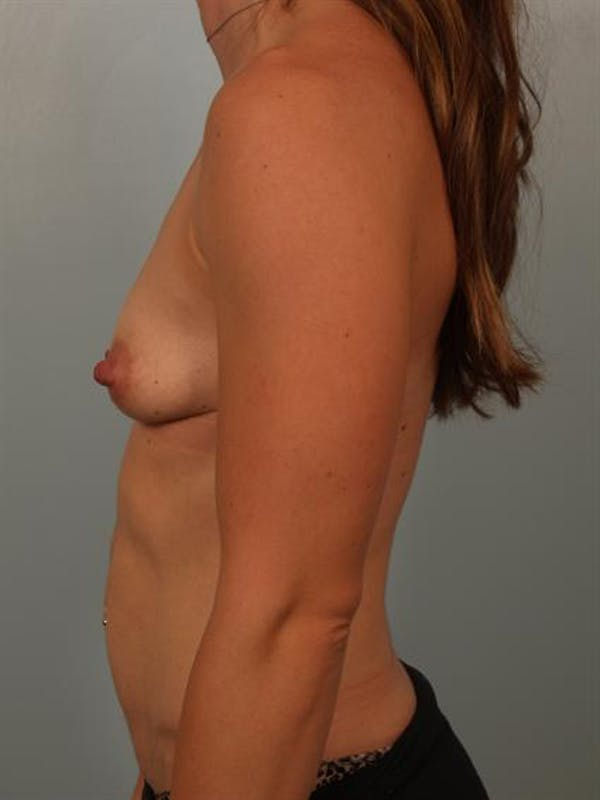 Breast Lift Gallery - Patient 1311066 - Image 3