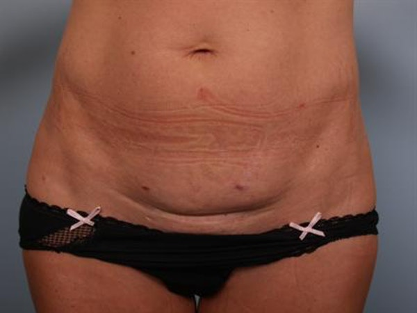 Tummy Tuck Gallery - Patient 1311065 - Image 9