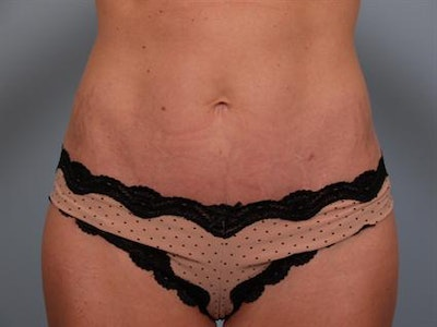 Tummy Tuck Gallery - Patient 1311065 - Image 10