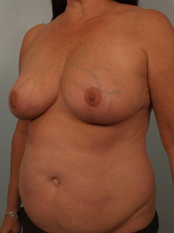 Power Assisted Liposuction Gallery - Patient 1311067 - Image 2