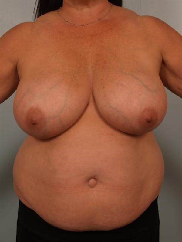 Power Assisted Liposuction Gallery - Patient 1311067 - Image 3