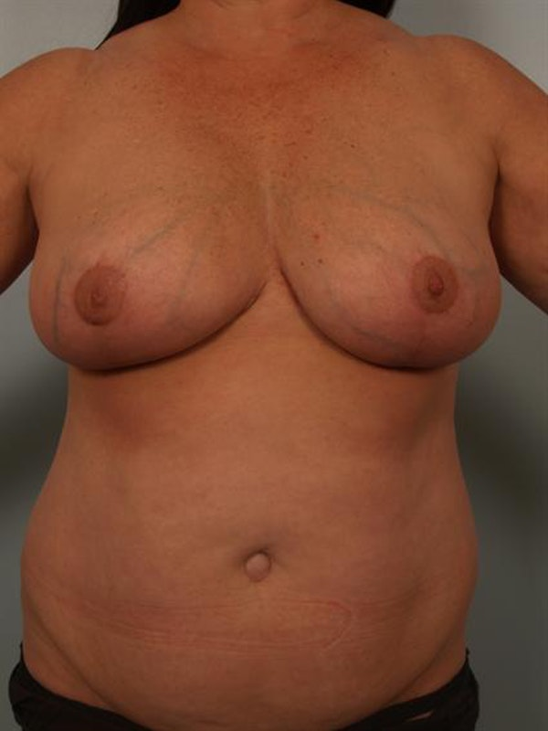 Power Assisted Liposuction Gallery - Patient 1311067 - Image 4
