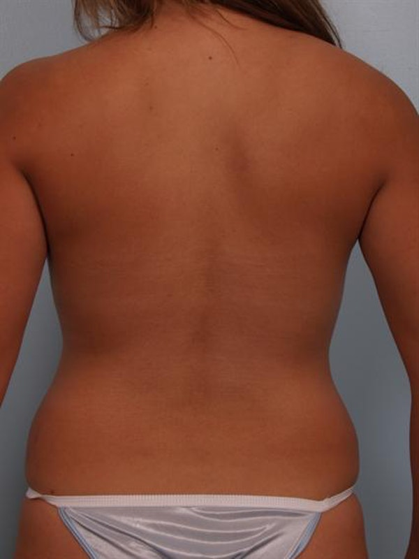 Tummy Tuck Gallery - Patient 1311068 - Image 7