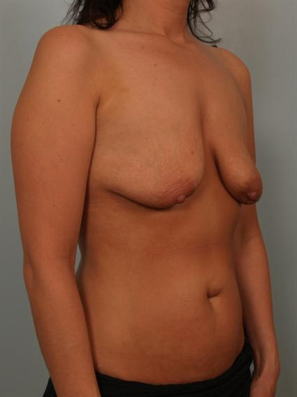 Breast Lift Gallery - Patient 1311073 - Image 3