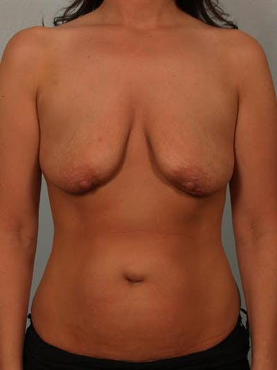 Breast Lift Gallery - Patient 1311073 - Image 1