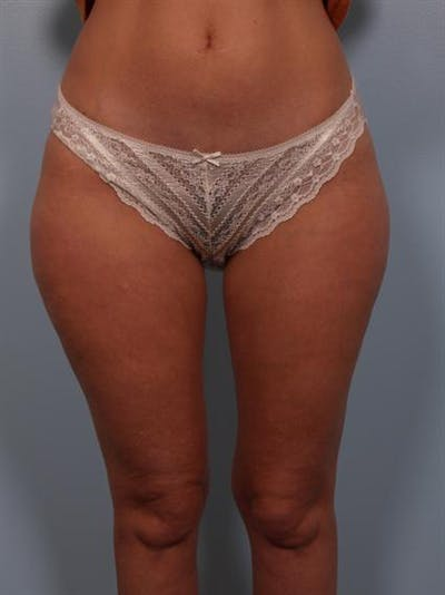 Power Assisted Liposuction Gallery - Patient 1311075 - Image 1