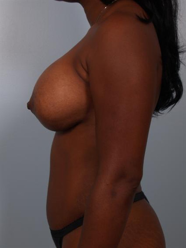 Breast Lift Gallery - Patient 1311077 - Image 3