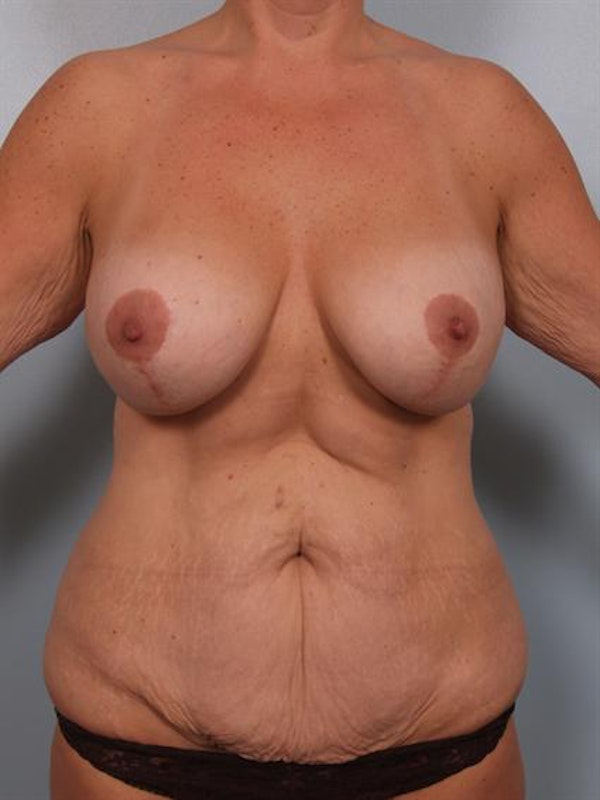 Tummy Tuck Gallery - Patient 1311076 - Image 1