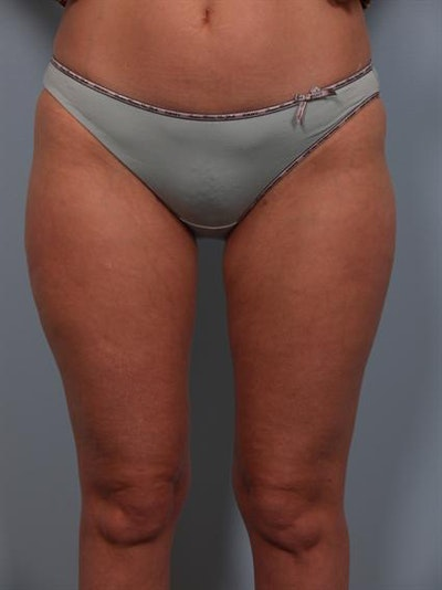 Power Assisted Liposuction Gallery - Patient 1311075 - Image 2