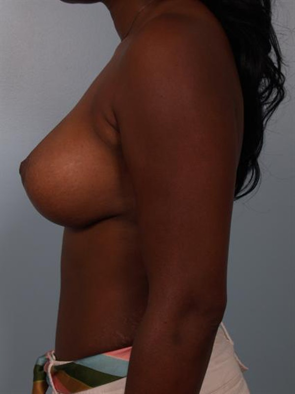 Breast Lift Gallery - Patient 1311077 - Image 4