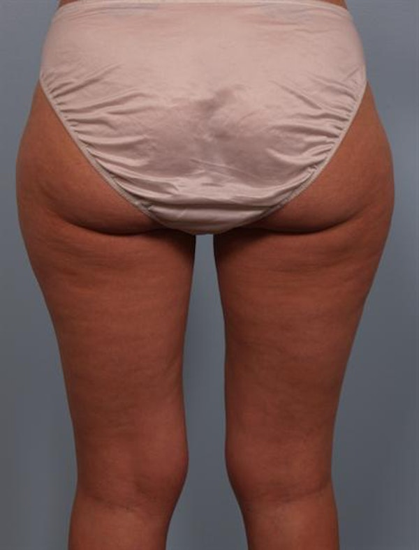 Power Assisted Liposuction Gallery - Patient 1311075 - Image 3