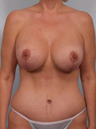 Tummy Tuck Gallery - Patient 1311076 - Image 2