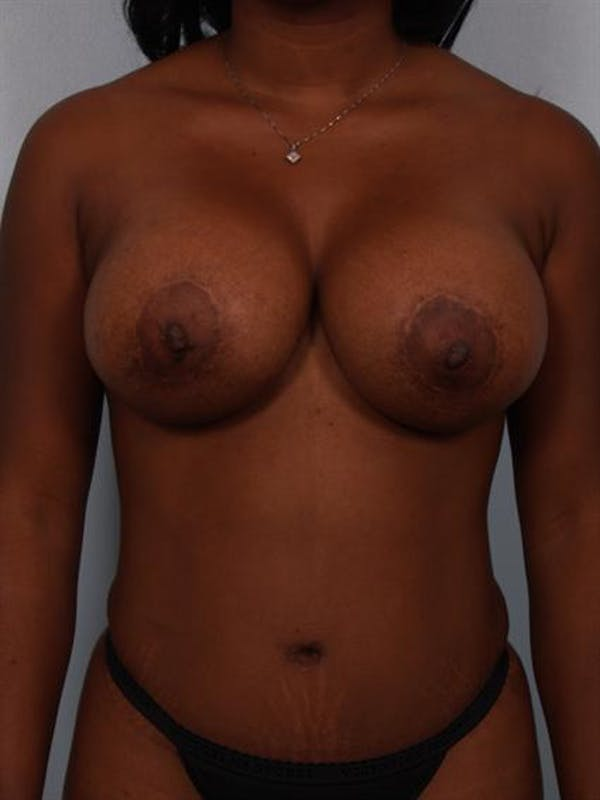 Breast Lift Gallery - Patient 1311077 - Image 1
