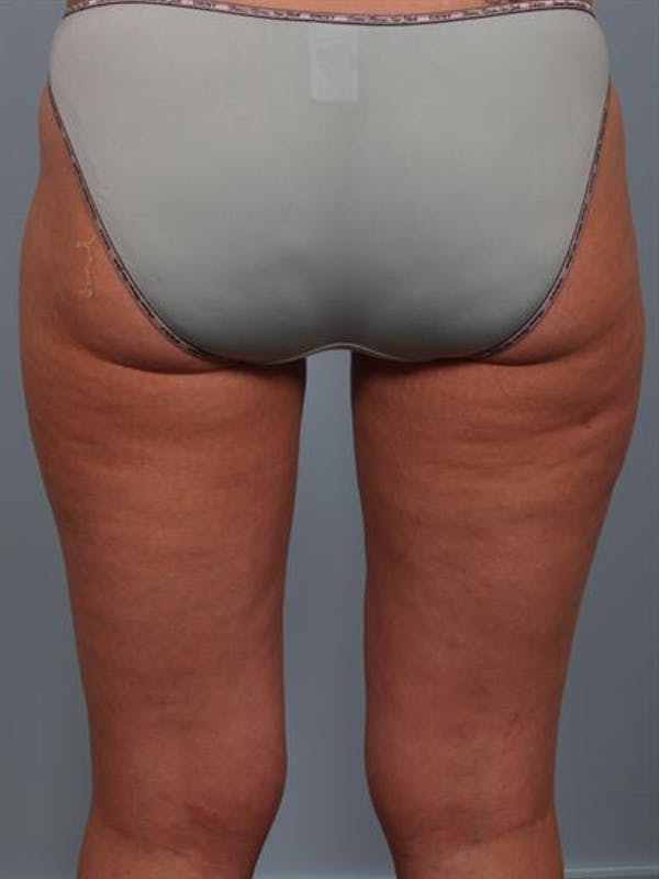 Power Assisted Liposuction Gallery - Patient 1311075 - Image 4