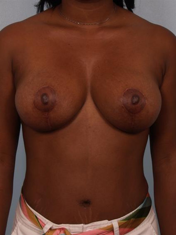 Breast Lift Gallery - Patient 1311077 - Image 2