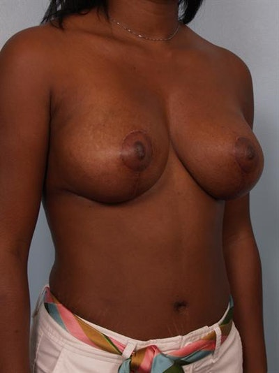 Breast Lift Gallery - Patient 1311077 - Image 6