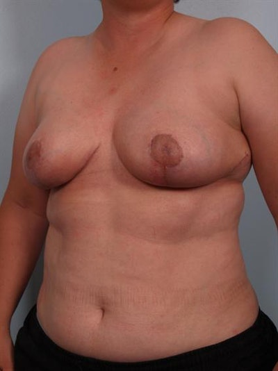 Power Assisted Liposuction Gallery - Patient 1311078 - Image 4