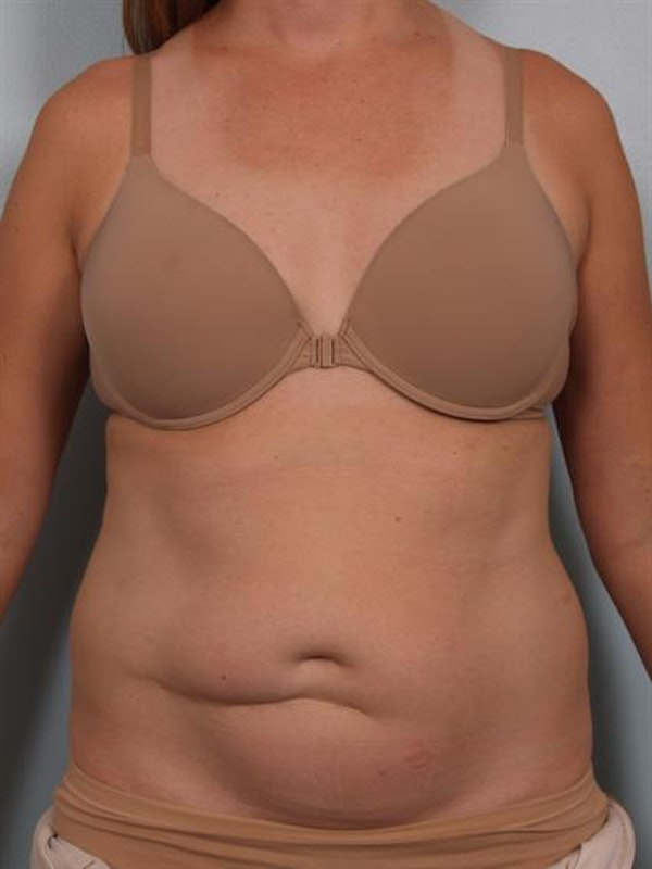 Tummy Tuck Gallery - Patient 1311082 - Image 1