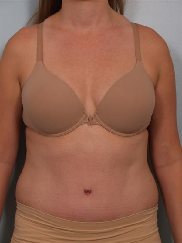 Tummy Tuck Gallery - Patient 1311082 - Image 2