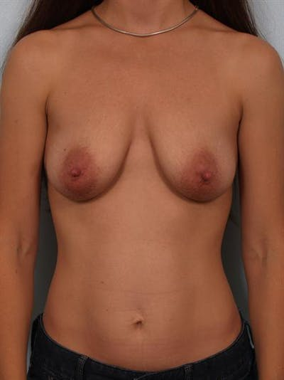Breast Lift Gallery - Patient 1311083 - Image 1