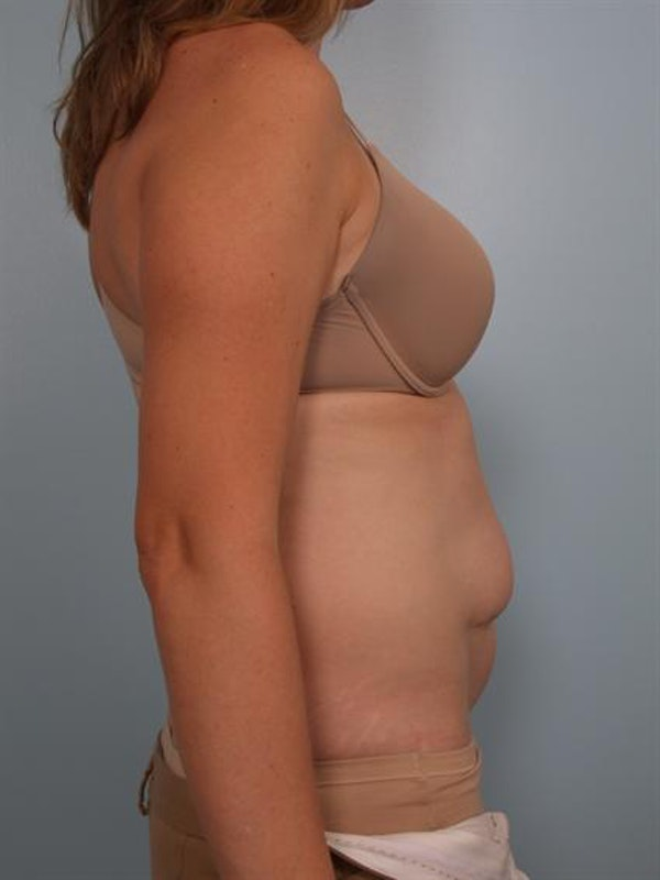 Tummy Tuck Gallery - Patient 1311082 - Image 3