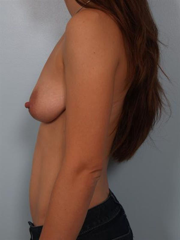 Breast Lift Gallery - Patient 1311083 - Image 3