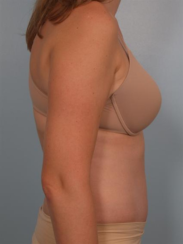 Tummy Tuck Gallery - Patient 1311082 - Image 4