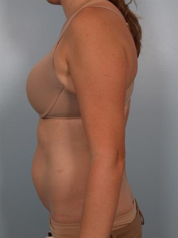 Tummy Tuck Gallery - Patient 1311082 - Image 5