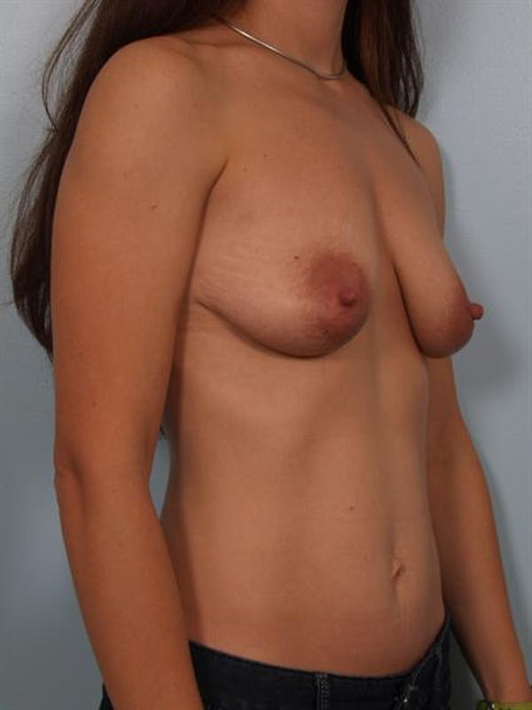 Breast Lift Gallery - Patient 1311083 - Image 5