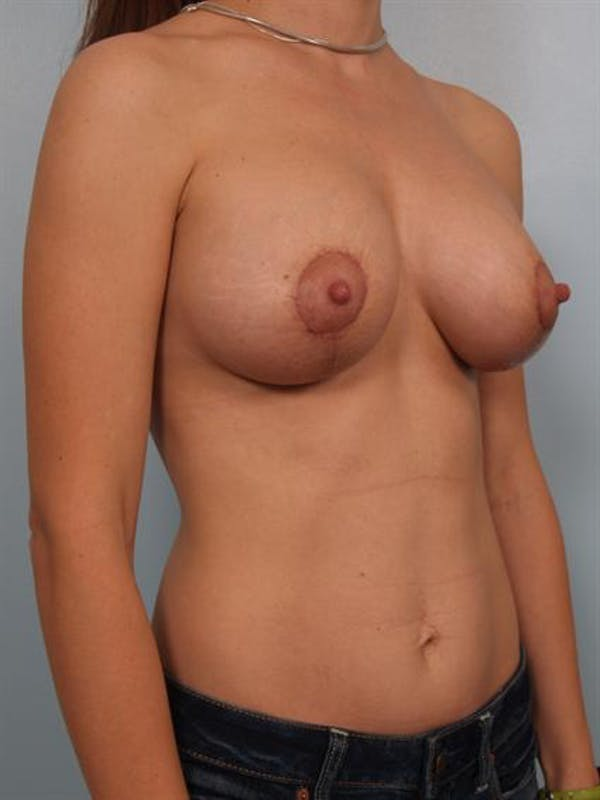 Breast Lift Gallery - Patient 1311083 - Image 6