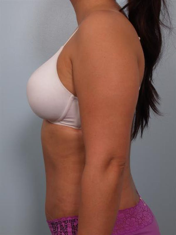 Power Assisted Liposuction Gallery - Patient 1311084 - Image 4