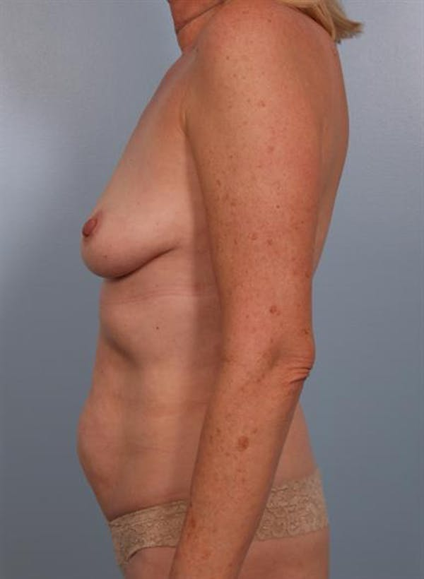 Breast Lift Gallery - Patient 1311086 - Image 3
