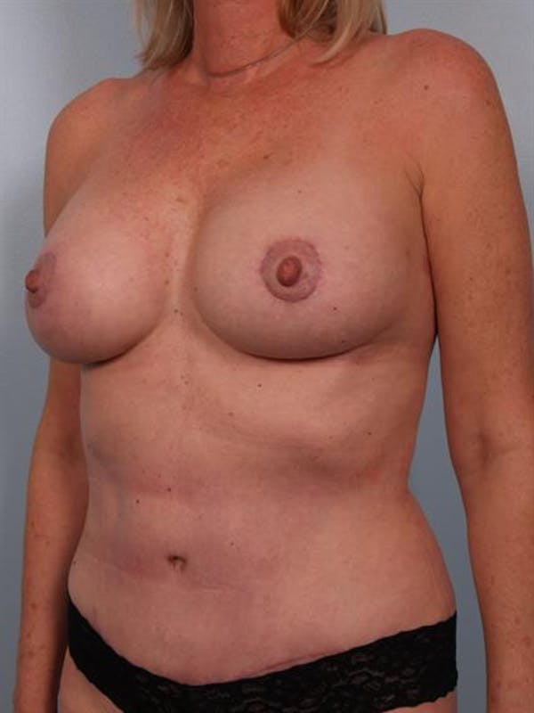 Breast Lift Gallery - Patient 1311086 - Image 6