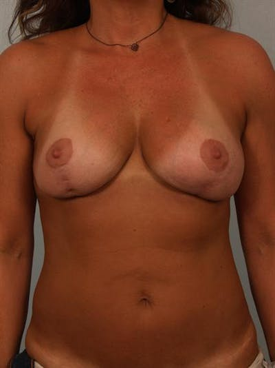 Power Assisted Liposuction Gallery - Patient 1311087 - Image 1
