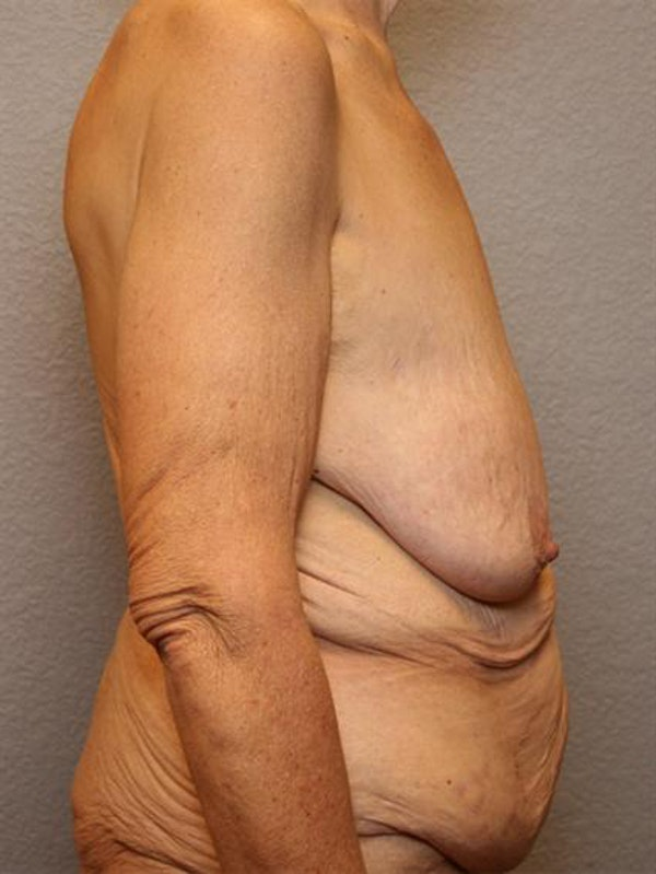 Tummy Tuck Gallery - Patient 1311088 - Image 3