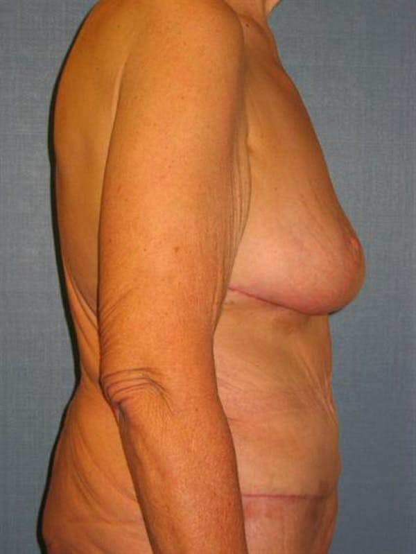 Tummy Tuck Gallery - Patient 1311088 - Image 4