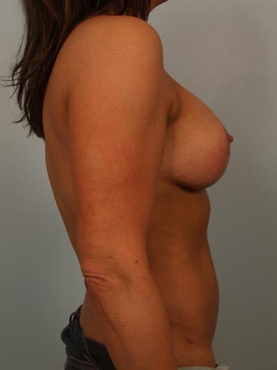Power Assisted Liposuction Gallery - Patient 1311087 - Image 6