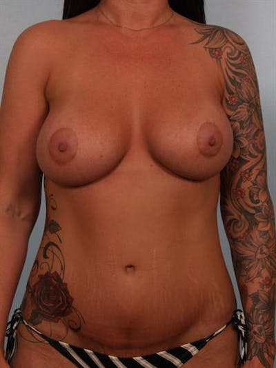 Breast Lift Gallery - Patient 1311090 - Image 2