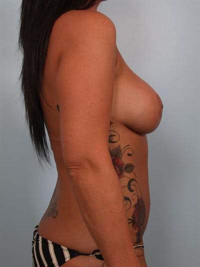 Breast Lift Gallery - Patient 1311090 - Image 4