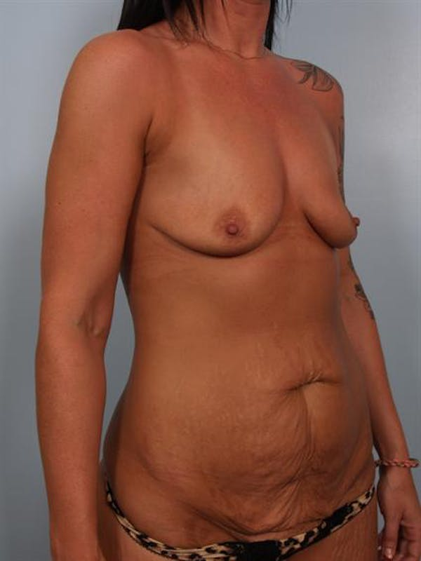 Breast Lift Gallery - Patient 1311090 - Image 5