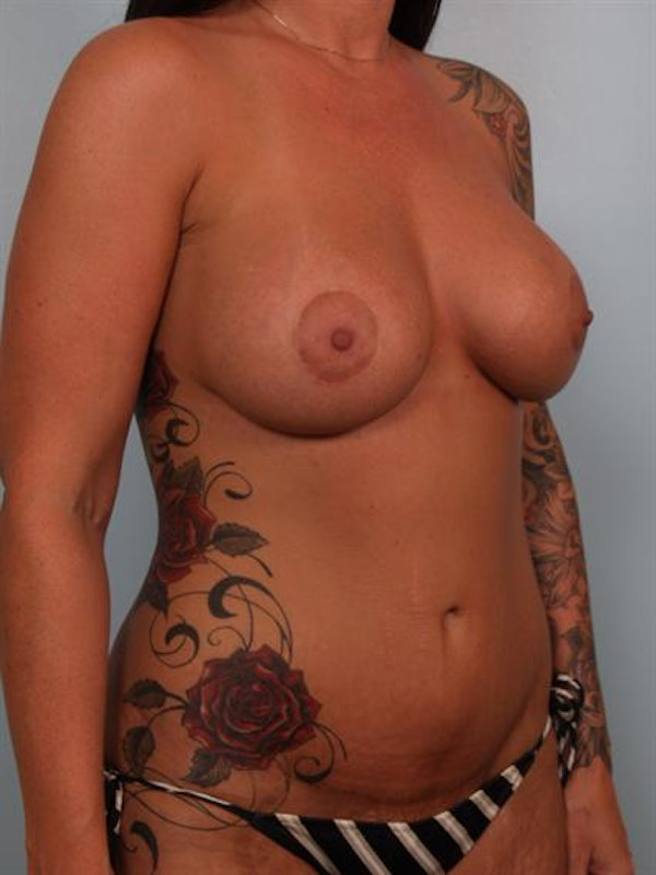 Tummy Tuck Gallery - Patient 1311092 - Image 6