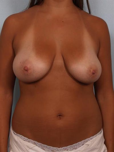 Breast Lift Gallery - Patient 1311094 - Image 1