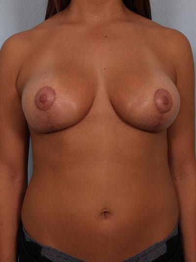 Breast Lift Gallery - Patient 1311094 - Image 2