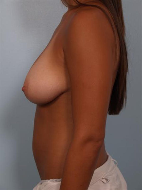 Breast Lift Gallery - Patient 1311094 - Image 3