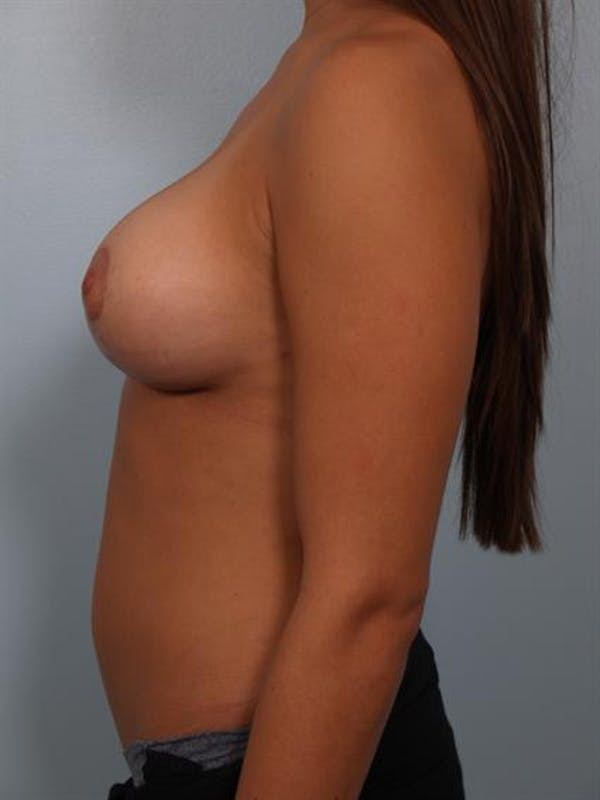 Breast Lift Gallery - Patient 1311094 - Image 4