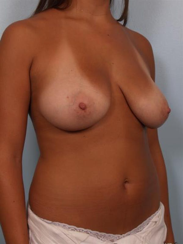 Breast Lift Gallery - Patient 1311094 - Image 5