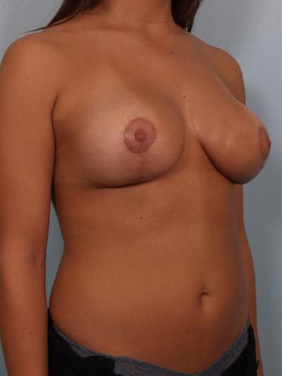 Breast Lift Gallery - Patient 1311094 - Image 6